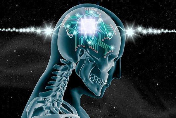 ایمپلنت مغزی