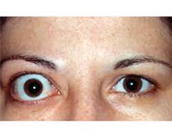 تیروئید چشمی چیست؟