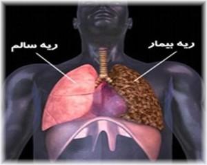 ۵ روش طبیعی برای سم زدایی از ریه افراد سیگاری