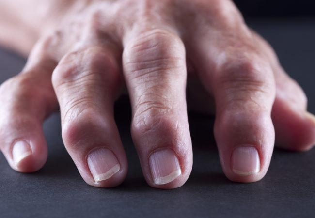 چگونه درد آرتروز انگشتان خود را بهبود بخشیم؟