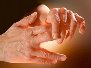 آرتروز انگشتان و راه درمان