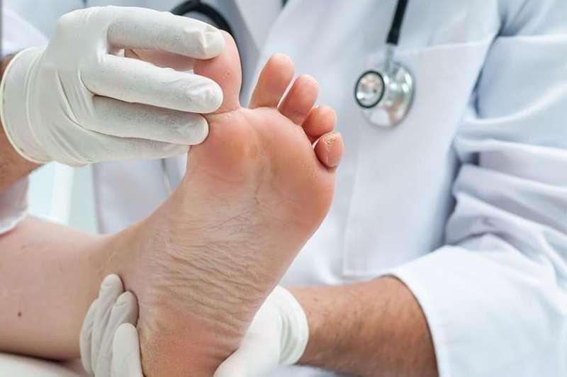 بیماری کف پا
