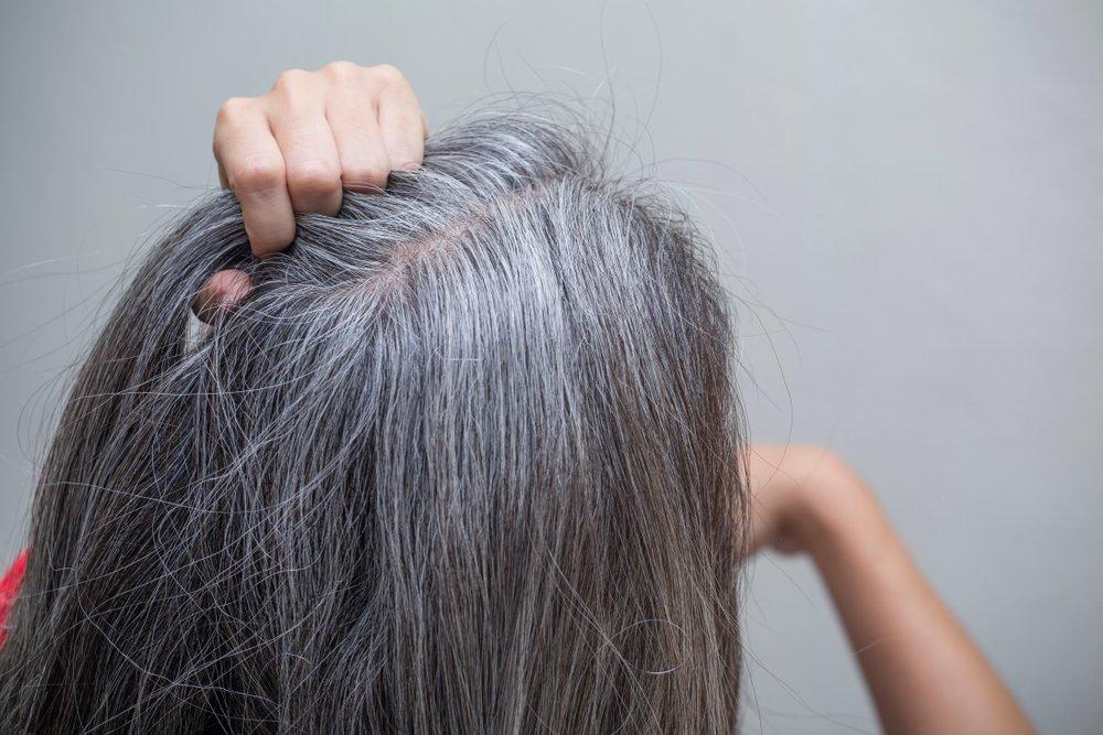 عجیب ترین بیماری های جهان/ از سفید شدن یک شبه موها تا هوس خوردن رنگ و خاک