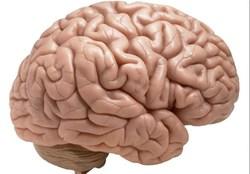 سرد شدن مغز چه بلایی بر سرتان میآورد.