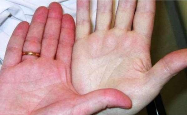 کم خونی را چگونه تشخیص دهیم؟ / چگونه تشخیص دهیم کم خونی داریم ؟