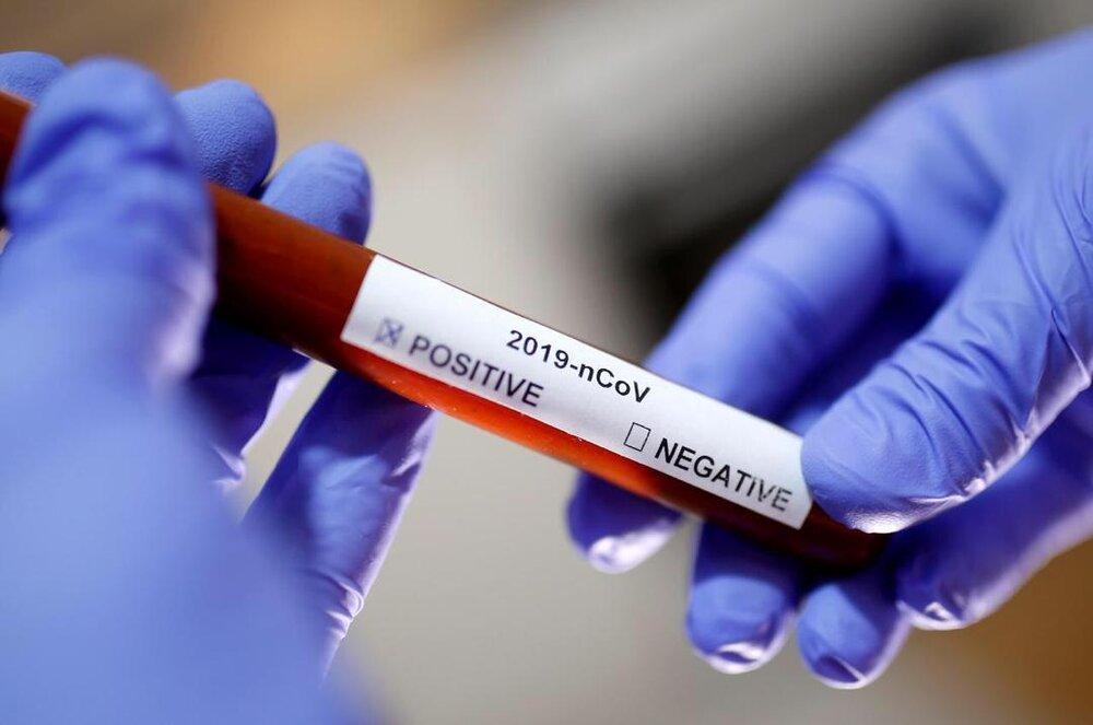 ویروس کرونا؛ چه کسانی باید آزمایش دهند؟