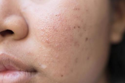 ویروس کرونا؛ مشکلات پوستی از نشانه های کروناست؟
