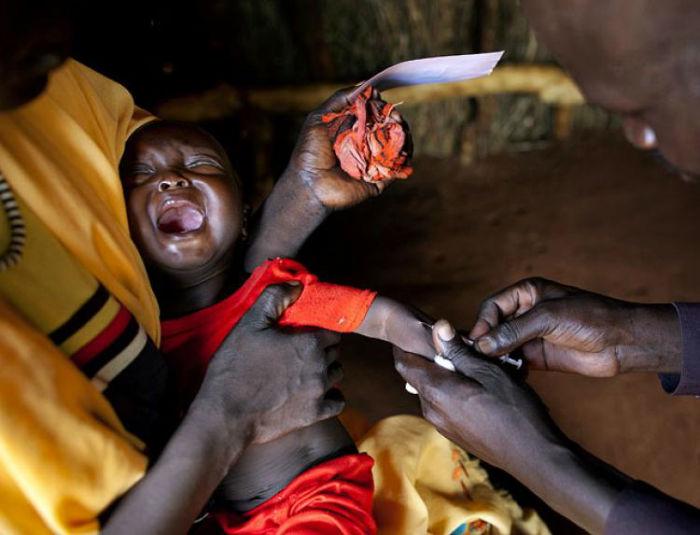 ۱۰ بیماری انسانی هولناک و مرگبار تاریخ را بشناسید + تصاویر