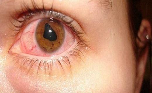 ۶ آسیب که در اثر مالش مداوم چشم ایجاد میشود