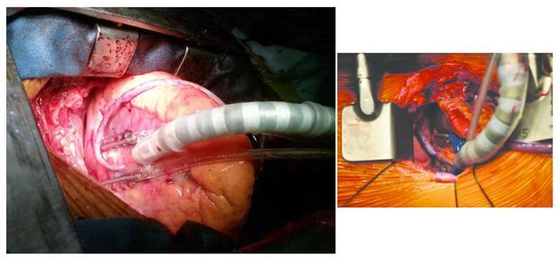 شرکت الکترومد پرشین توس اولین تولیدکننده اختاپوس (ثابتکننده بافت قلب) در کشور