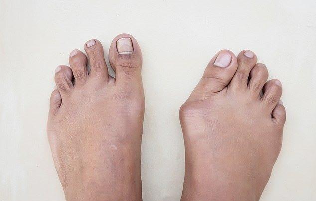 ۵ بیماری شایع پا و راهکارهایی ساده برای درمان آنها