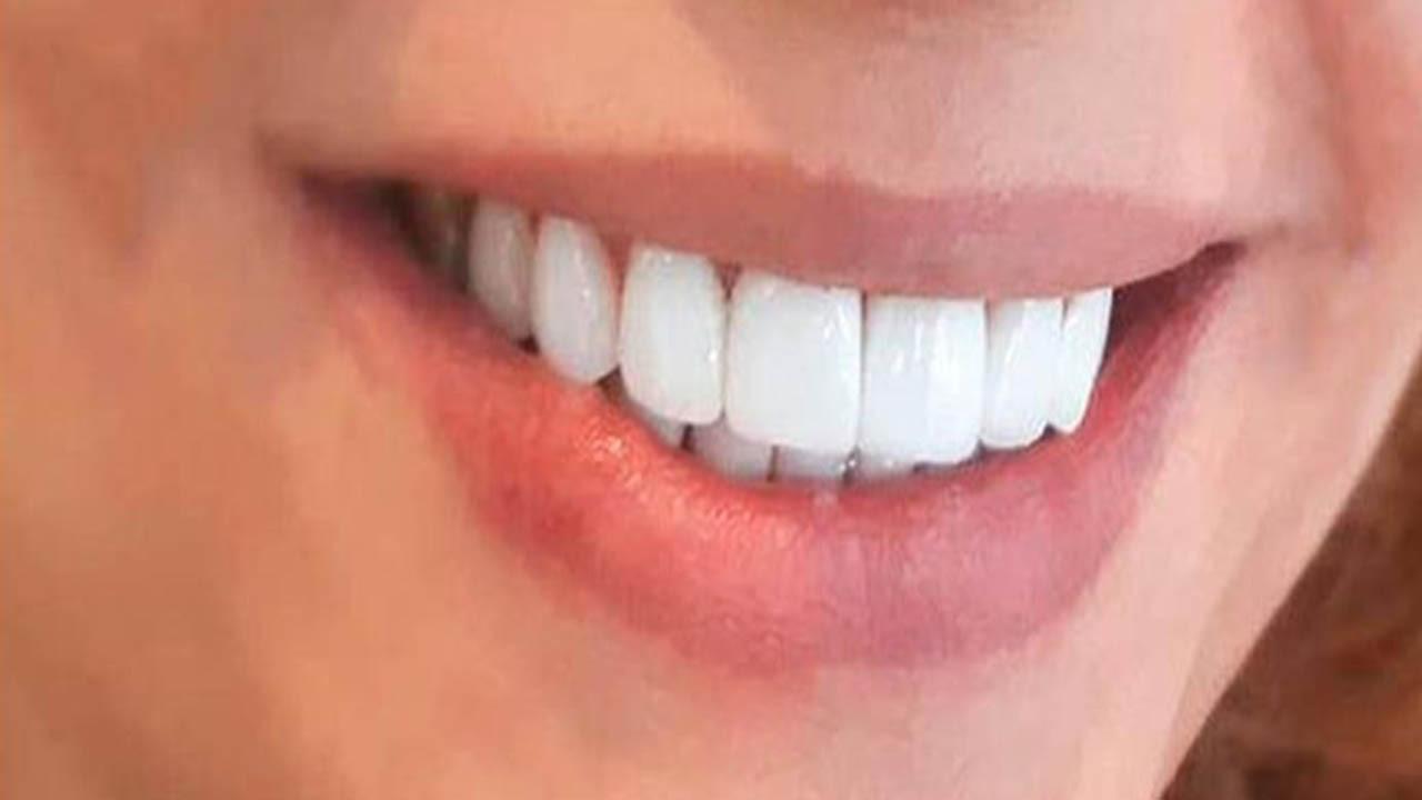 تاکید بر انجام اعمال دندانپزشکی ضروری
