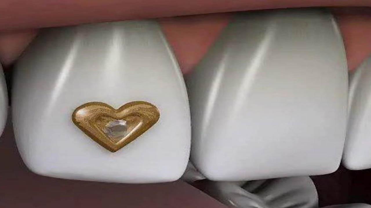ناآگاهی باعث جا به جایی مرزهای زیبایی در دندانپزشکی شده است