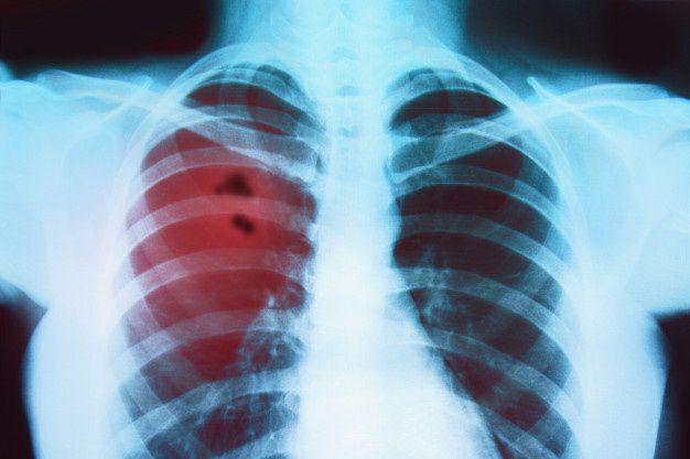 مرگبارترین بیماریها برای آقایان و اهمیت تشخیص سریع آن