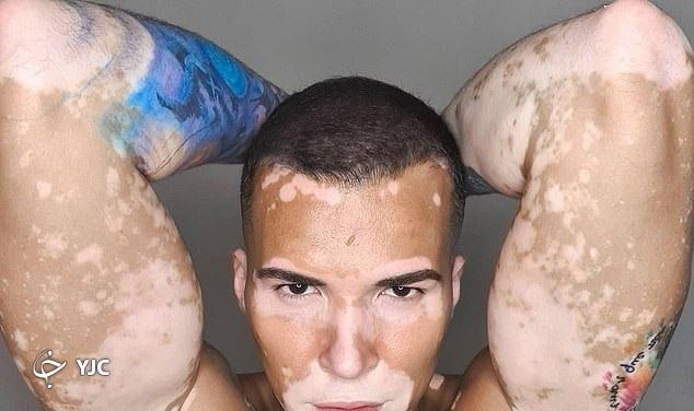 عارضه پوستی ای که مدل برزیلی را به افسردگی شدید کشاند