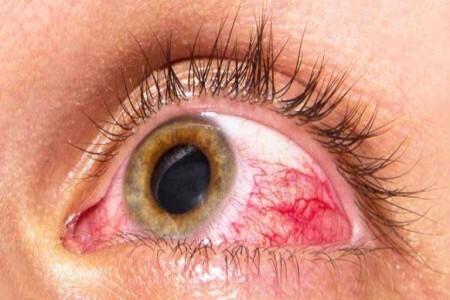 ۴ بیماری مرتبط با چشم و علائم آنها
