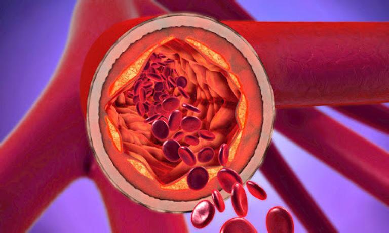 بیماری شریان کاروتید: علل، علائم و روشهای درمان