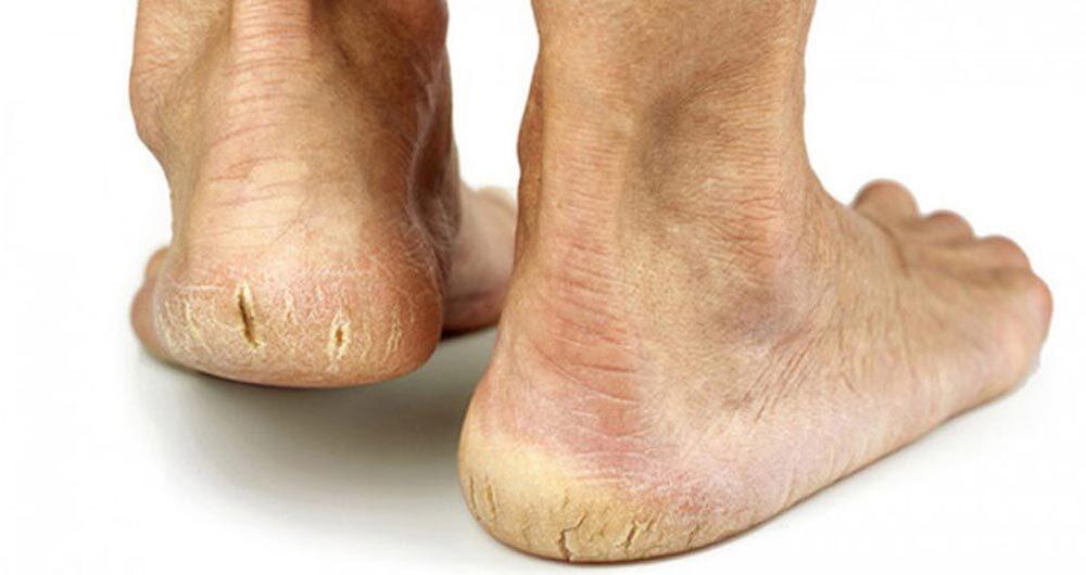 خشکی پوست پا