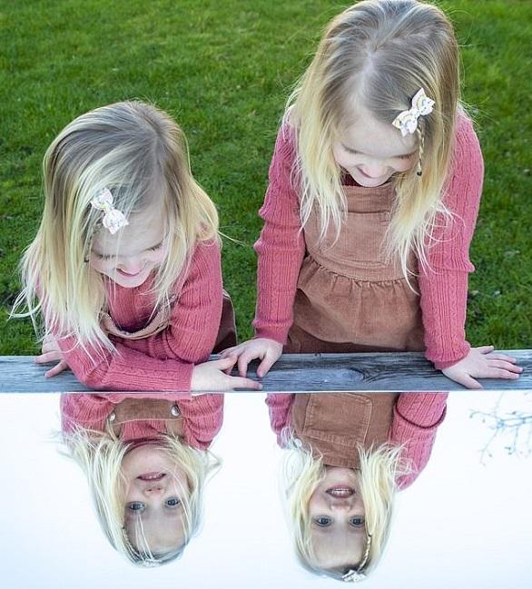 دوقلوهای آینه ای، بازتابی از یکدیگر هستند