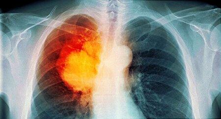 از علائم مرگبارترین سرطان جهان چه میدانید؟