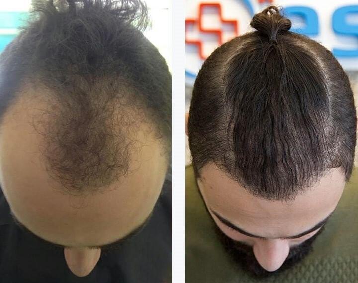 جدیدترین روش های کاشت مو را با کلینیک رویان سلامت بشناسید!