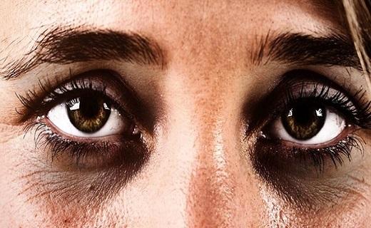 علامتی در چشم که نشان از بیماری خطرناک دارد