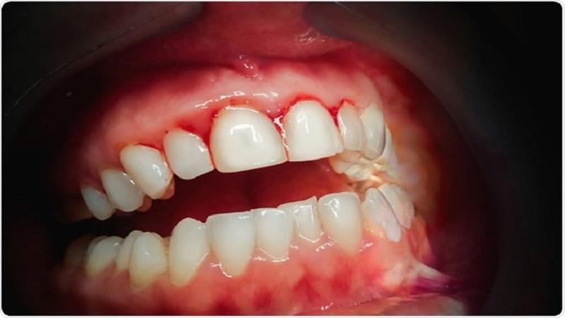 چگونه خونریزی دندان و لثه را متوقف کنیم؟