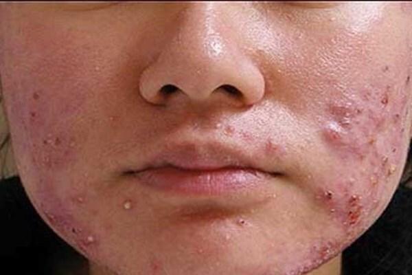 توصیههایی برای درمان عوارض پوستی ناشی از ماسک زدن