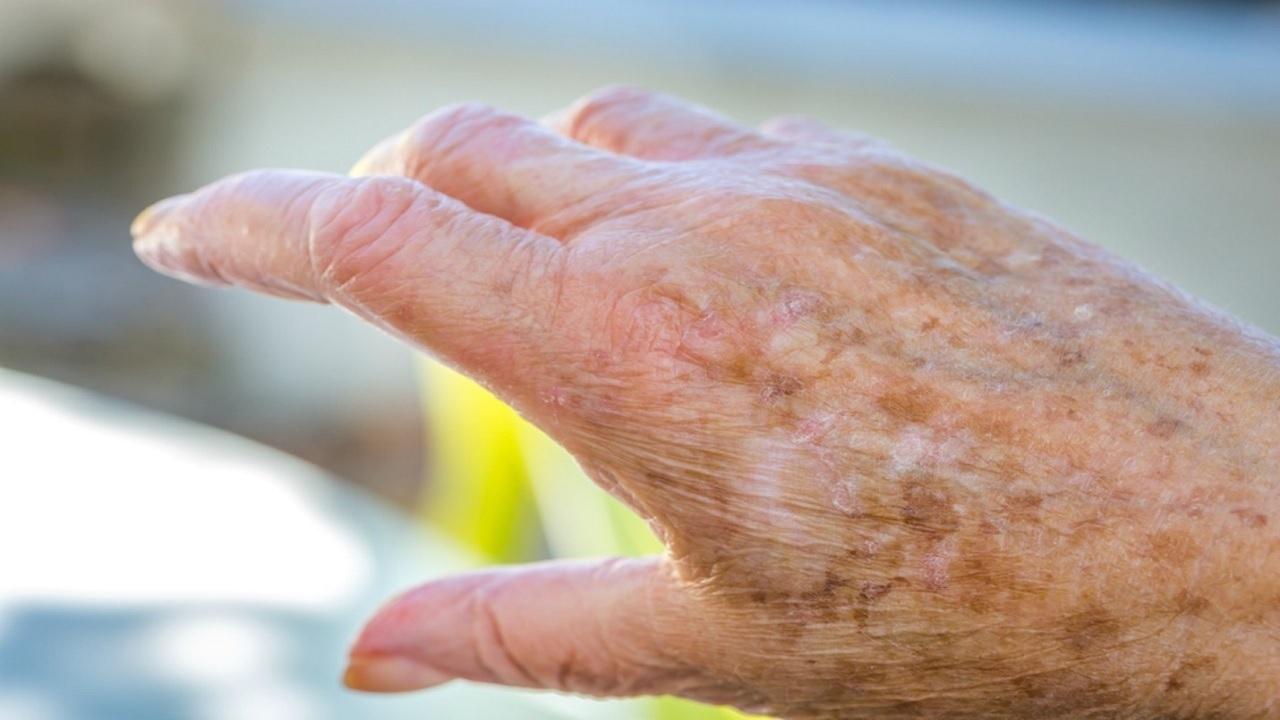 بیماری پوستی