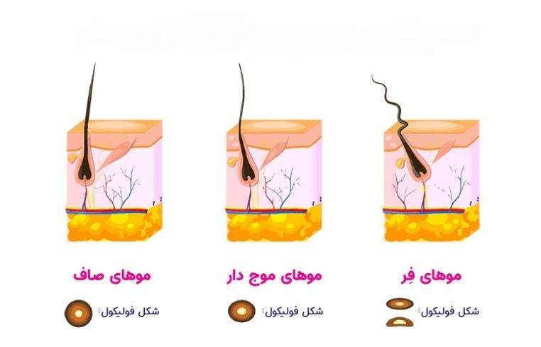 تعیین شکل مو