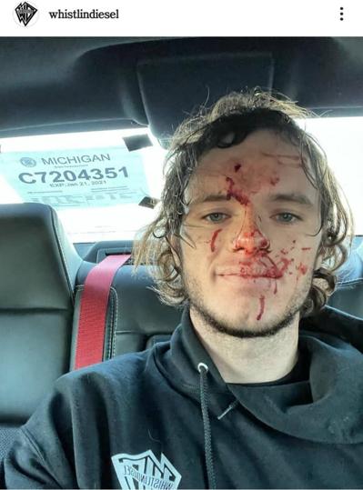 فعال یوتیوب به طور تصادفی به سر خود شلیک کرد