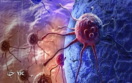 درمان سرطان با پیوند مغز استخوان، کمبود امکانات مانع درخشش اصفهان