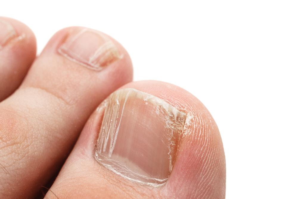 دلایل ایجاد لکههای سفید روی ناخنها و بیماریهای مربوط به آن