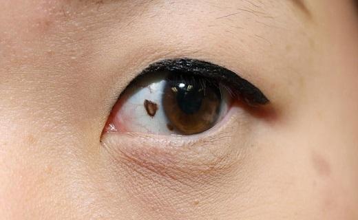سرطان چشم .. علل، علائم و درمان