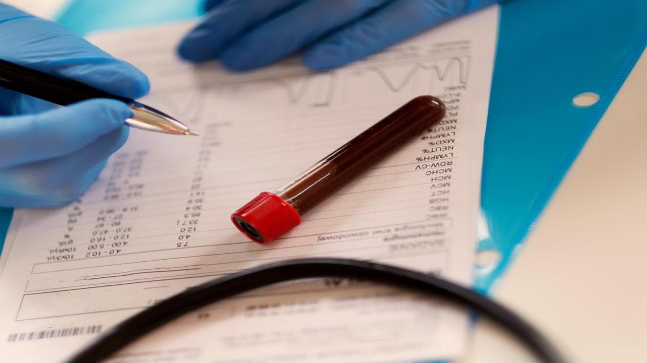 آزمایش خون را با این راهنمای کامل تفسیر کنید