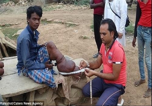 بیماری عجیب نوجوان هندی (+عکس)