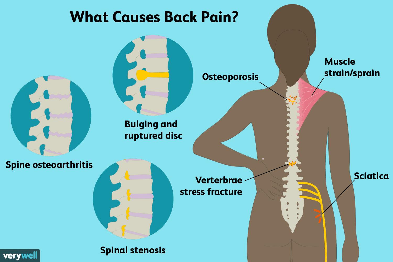 ۱۳ علت درد گودی کمر که ممکن است شما را شگفت زده کند