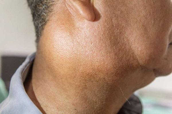 بیماری لایم چیست؟ علائم و راههای درمان