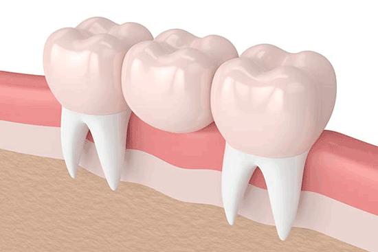 بریج دندان چیست؟ انواع، مزایا و معایب بریج دندان