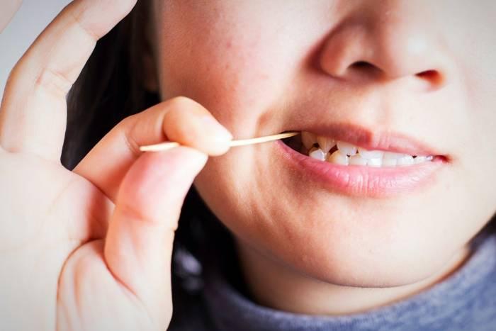 خلال دندان