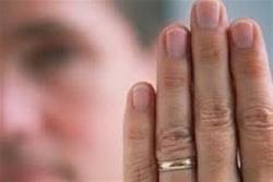ویروس کرونا؛ تاثیر طول انگشت حلقه بر افزایش فوتیها در مردان