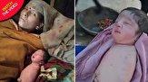تولد نوزاد بی دست و پا در هند!
