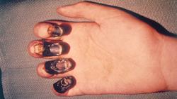 کابوس جدیدی به نام طاعون خیارکی!/ این بیماری چگونه منتقل میشود؟