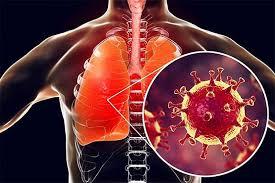 فیبروز ریه