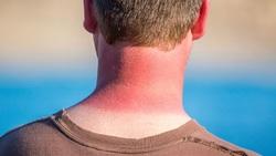 ۶ نسخه خانگی فوق العاده برای درمان آفتاب سوختگی