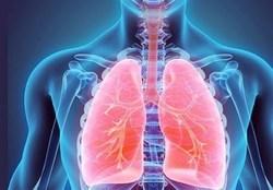 در روزهای کرونایی با ترفندهای خانگی ریههایتان را تقویت کنید
