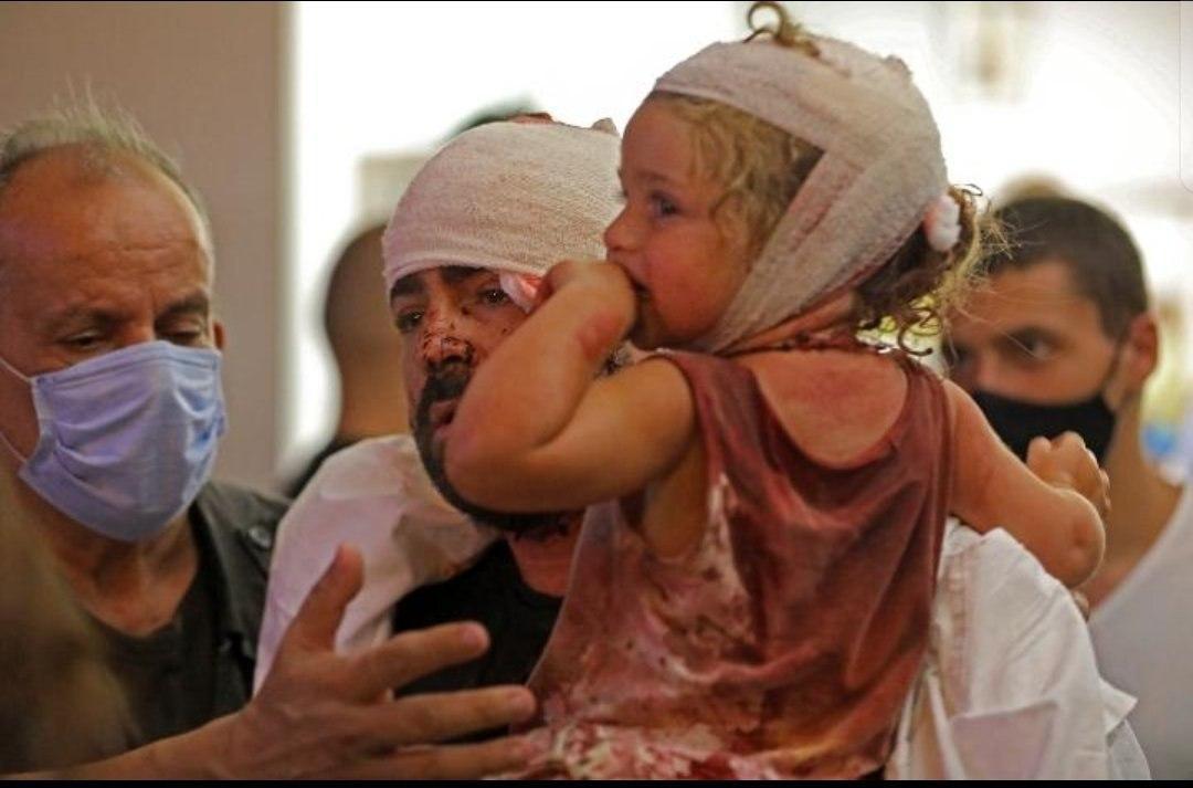 مجروحان انفجار بیروت