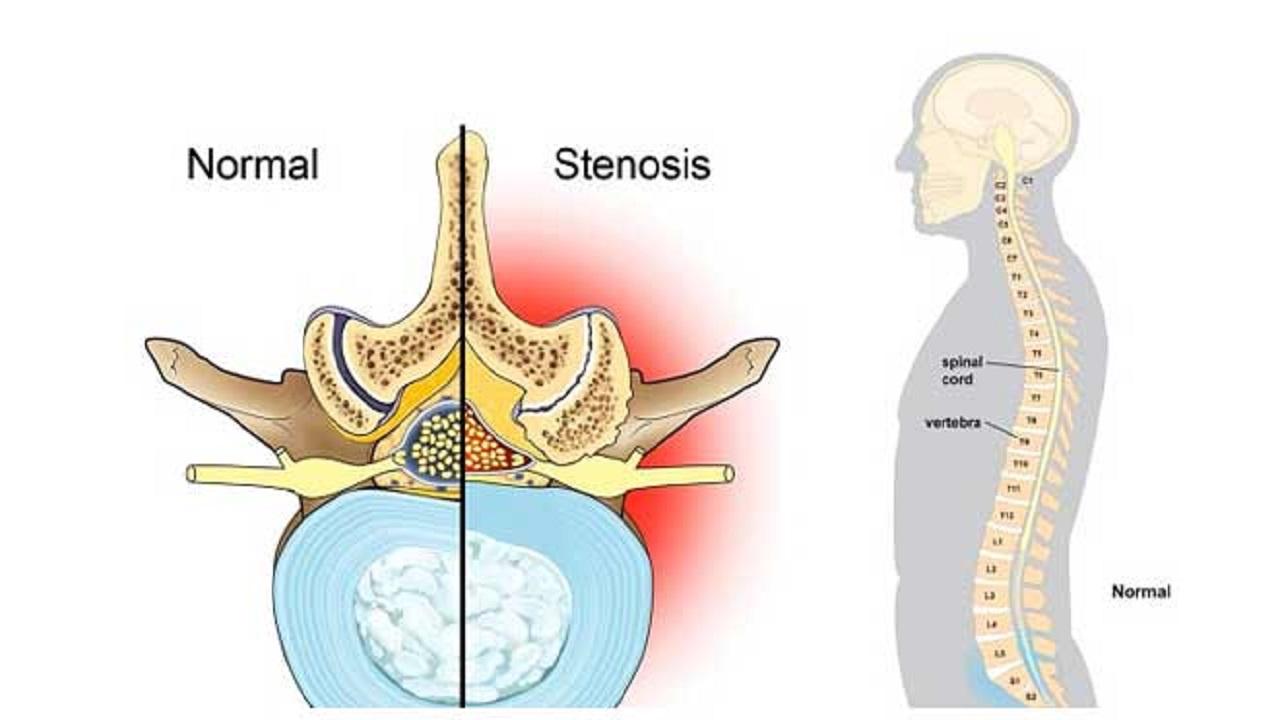 تنگی کانال نخاع کمری، علایم و شیوههای درمان