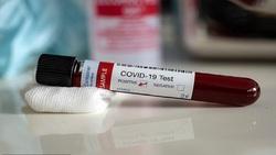 تشخیص مرگبار بودن ویروس کرونا با آزمایش خون