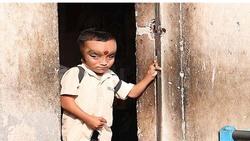 رفتار مردم هند با پسر بچه عجیب الخلقه خبر ساز شد + تصاویر